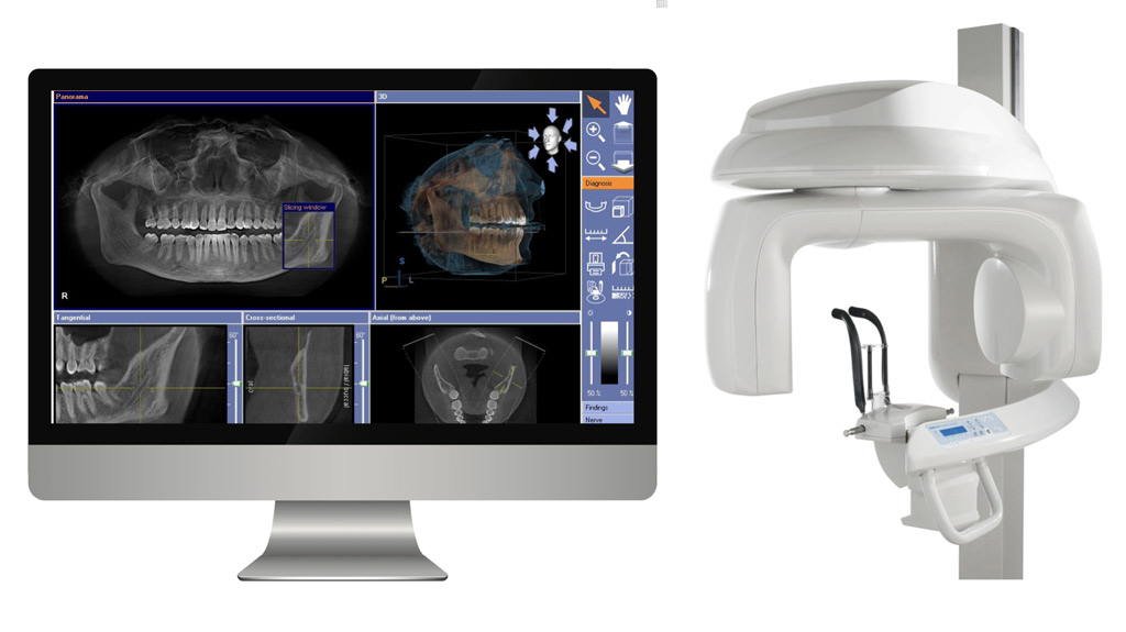 Computer-Guided-Dental-Implant-Surgery