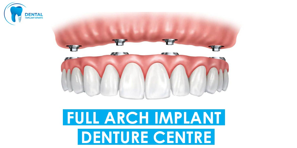 full mouth dental implants service in gurgaon