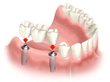 multiple-teeth-implants
